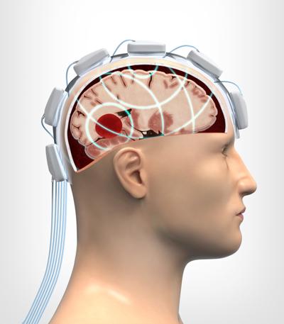 skillnad mellan stroke och hjärnblödning